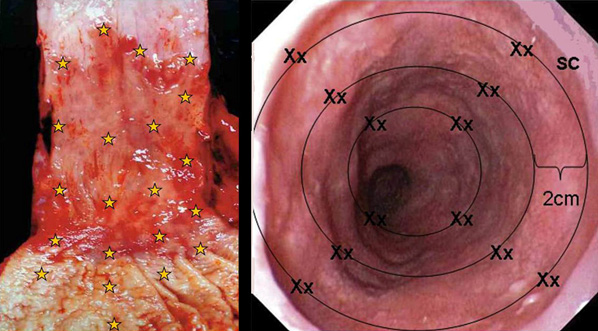 Endoskopija8