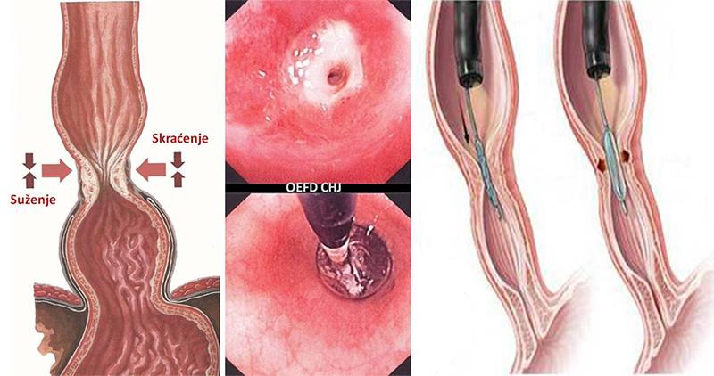 Endoskopske-procedure