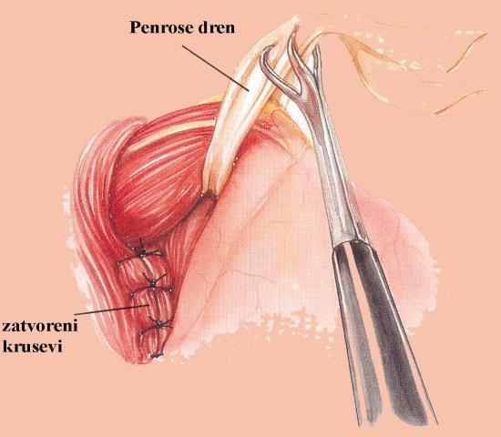 Sutura-kruseva-dijafragme