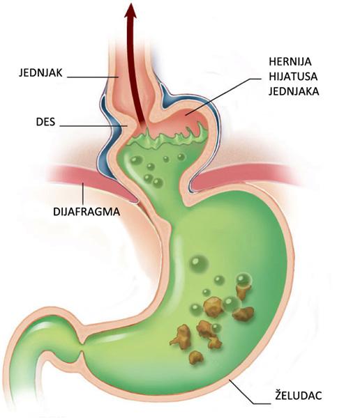 extraoesophagealer reflux symptome