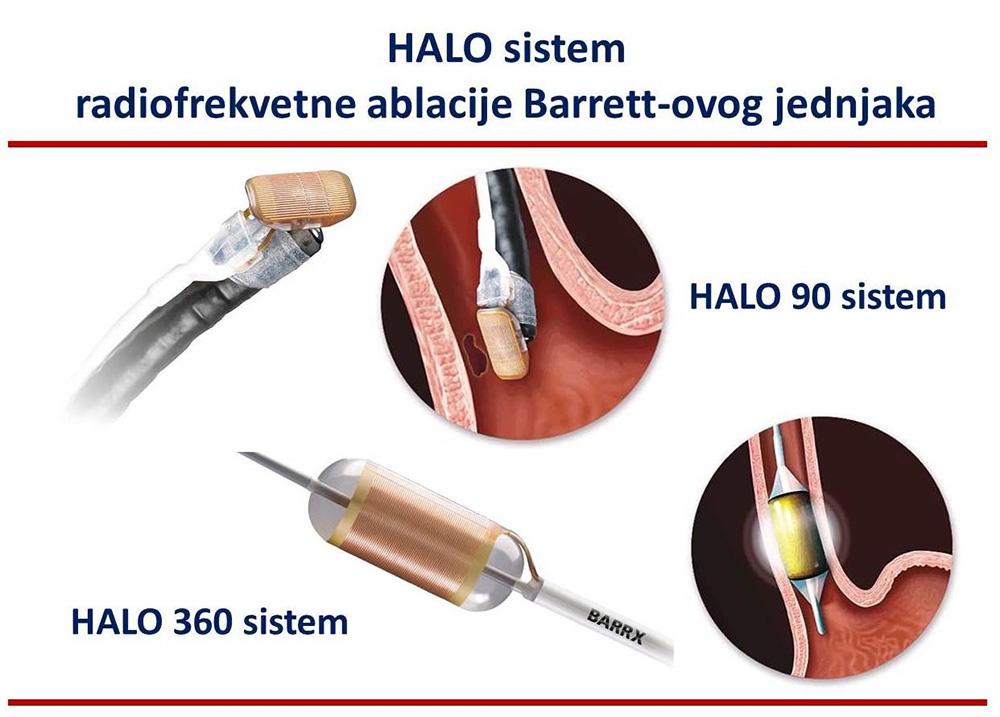 halo-sistem